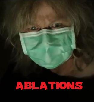 ABLATIONS   ABLATIONS   2013